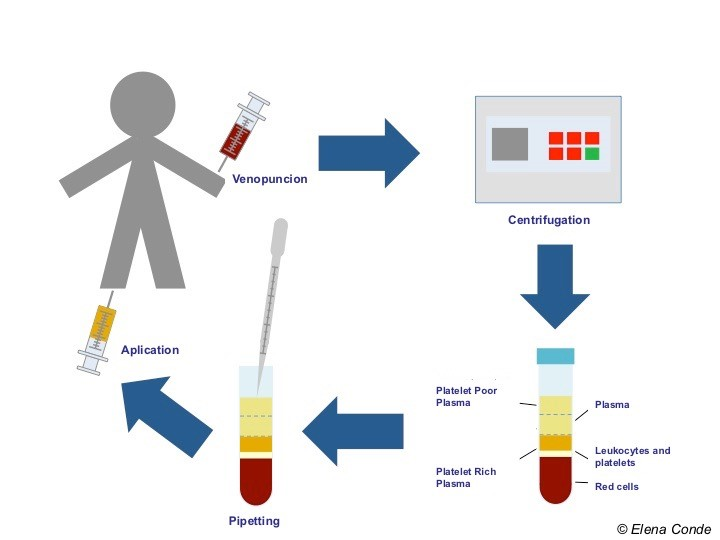 Blood testing flow chart