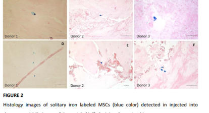 A collage picture of 6 injected MSCs in human tissue.