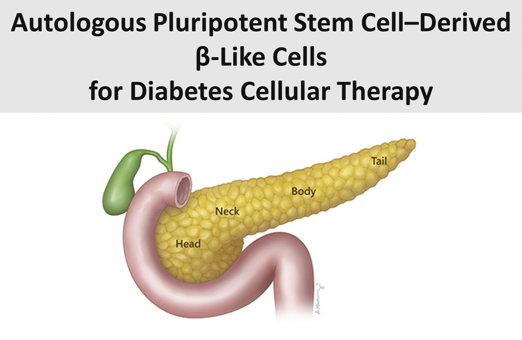 Autologous Pluripotent Stem Cell–Derived β-Like Cells for Diabetes Cellular Therapy