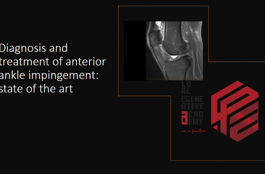 Diagnosis and treatment of anterior ankle impingement: state of the art