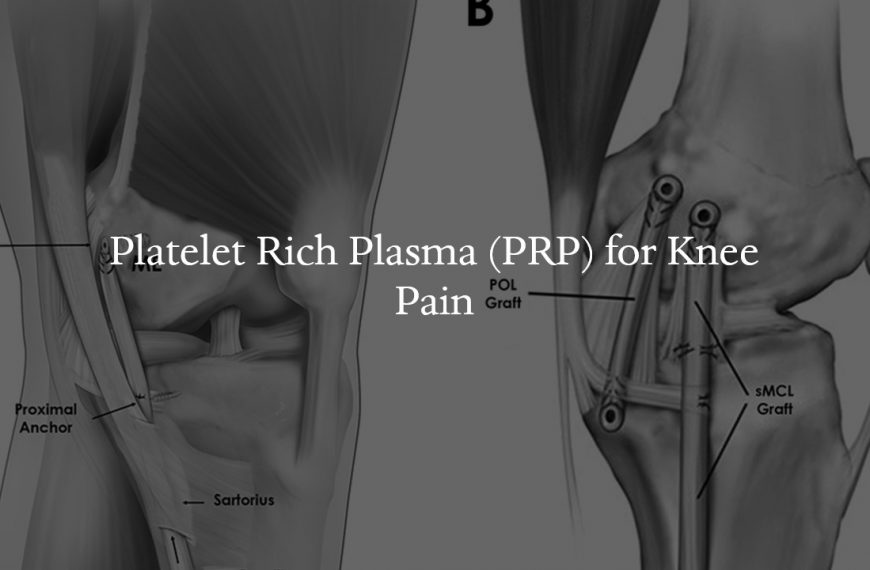 Platelet Rich Plasma (PRP) for Knee Pain
